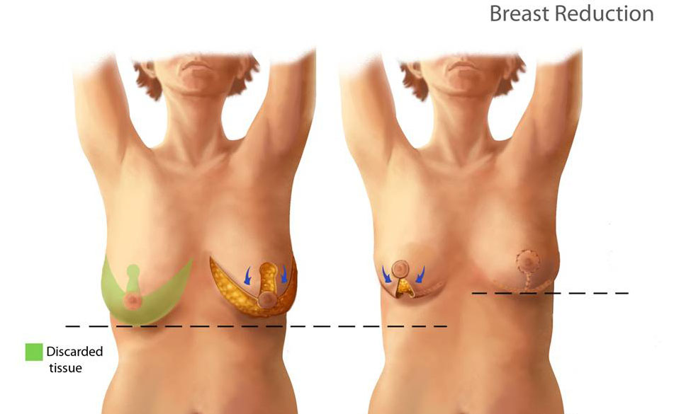 dissovable Breast stitches reduction