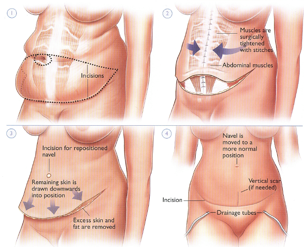 Tummy Tuck - Abdominoplasty - Surgery Package in Turkey ...